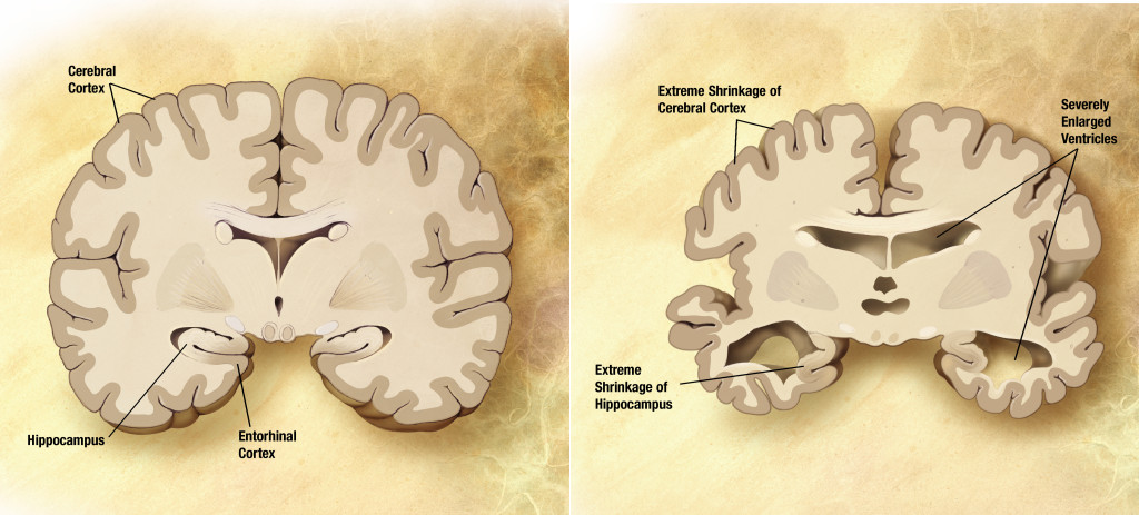 Alzheimer's disease brain and normal brain comparison