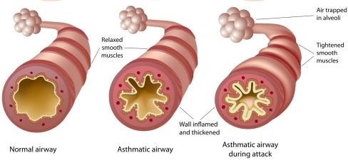asthma and cannabis