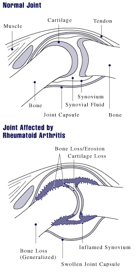 cannabis and remauthoid arthritis